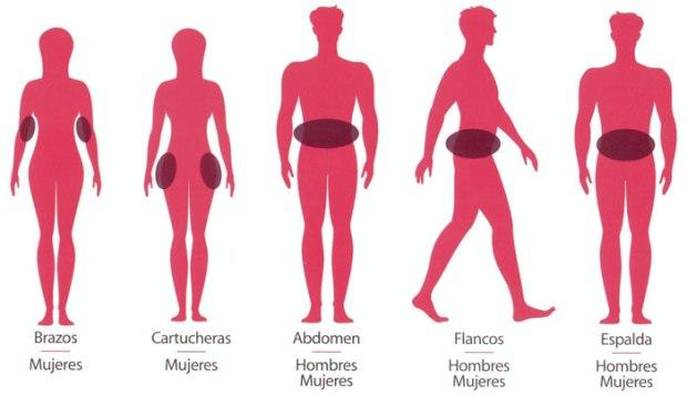 Zonas del cuerpo candidatas a liposuccion con CRIOLIPOSIS